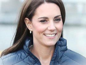 Kate Middleton si e sottoposta a questa procedura cosmeticaNekHOyG 18
