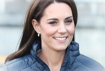 Kate Middleton si e sottoposta a questa procedura cosmeticaNekHOyG 3